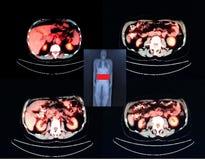 Pet-/ctnivå av njure Arkivbilder