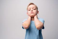 Petit garçon avec des corrections sur des coudes Photographie stock libre de droits