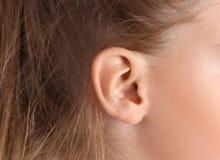 Petite fille mignonne avec le problème d'audition images libres de droits