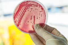 Petri dish with bacteria. Petri dish with red bacteria, lab work Royalty Free Stock Photos