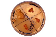 Petri dish and bacterial colony Stock Photography