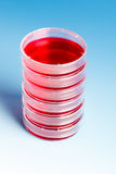 Petri dish with blood samples Stock Photos