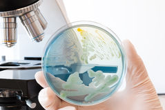 Petri dish infected with different bacteria in laboratory doctor hand. Cled agar petri dish and laboratory microscope in the background Royalty Free Stock Images