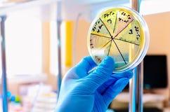 Petri Dish Microbiologisch laboratorium Vorm en schimmelculturen Bacterieel onderzoek stock afbeelding