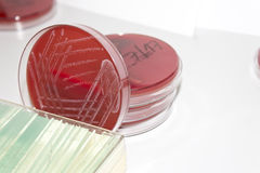 Petri dishes with blood agar and bacterial colonies Royalty Free Stock Image