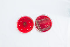 Petri dishes with growing bacteria Royalty Free Stock Photography