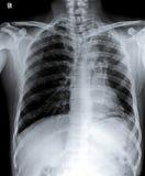 Petto normale X Ray dell'essere umano Fotografia Stock