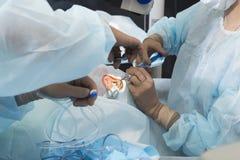 Phacoemulsification, destruição da lente opaca do olho b imagem de stock