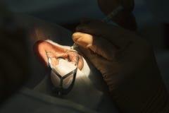 Phacoemulsification, distruzione della lente opaca dell'occhio b Immagini Stock Libere da Diritti