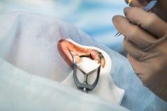 Phacoemulsification, Zerstörung der undurchsichtigen Linse des Auges b Lizenzfreies Stockbild