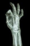 Pharange distal de la fractura del dedo medio fotografía de archivo