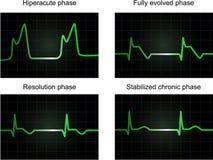 Phasen der miocardial Infarktbildung des Pfostens Lizenzfreie Stockfotografie