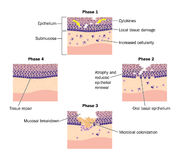 Phases of epithelial repair Stock Photos