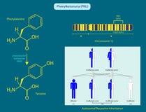 Phenylketonuria. Illustration of the basic characteristics of phenylketonuria Stock Photography