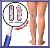 Phlebeurysm Músculo del becerro como bomba para las venas profundas de la pierna Imagen de archivo