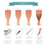 Phlebology infographic, traitant des veines variqueuses Illustration de vecteur d'étape des maladies de veine Compression médical illustration libre de droits