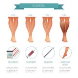 Phlebology infographic, treating varicose veins. Vector illustration of stage of vein diseases. Medical compression. Hosiery for your design Stock Images