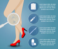 Phlebology vectorinfographics Stock Foto
