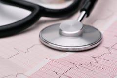 Phonendoscope and cardiogram Royalty Free Stock Image