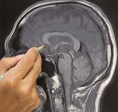 Photo de cerveau d'IRM et main du ` s de docteur Photos stock