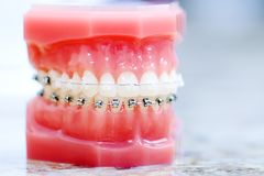 Photo de dentier avec le meilleur foyer sur des dents Dentiste se tenant sur image libre de droits