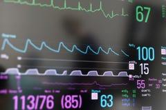 Photo de plan rapproché de moniteur d'électrocardiogramme Images libres de droits