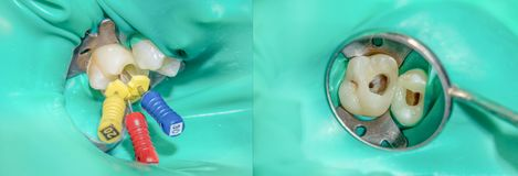 Photo endodontic treatment of dental canals in the lower molar p. Ermanent tooth molar with endodontic file with apex locator, tooth with clamp attached to it by stock photography