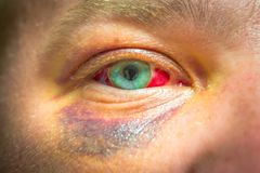 Photo of eye injury. Place for your text royalty free stock images