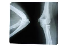 Photo of a human x-ray of a joint in the elbow area royalty free stock photo