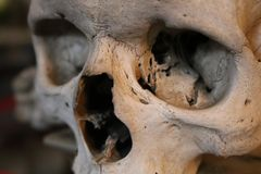 Photo of A Human Skull Fractured stock photography