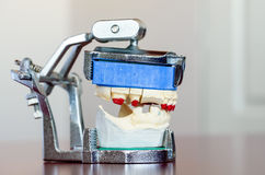 Photo of a Mold - Dental Concept Stock Image