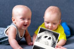 Photo ultrasound twins. In the background are twins, a boy and a girl of 7 months. Maternity. royalty free stock photography