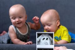 Photo ultrasound twins. In the background are twins, a boy and a girl of 7 months. Maternity. Photo ultrasound twins. In the background are twins, a boy and a royalty free stock images