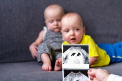 Photo ultrasound twins. In the background are twins, a boy and a girl of 7 months. Maternity. Photo ultrasound twins. In the background are twins, a boy and a royalty free stock photography