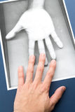 Photocopy of hand Stock Photos
