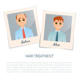 Photographs of a man before and after hair treatment Stock Photos