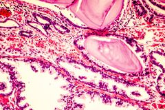Photomicrograph of prostate hyperplasia. Prostate hyperplasia. Photomicrograph showing dilated glands, papillary projections inside the lumen of the glands royalty free stock images