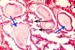 Photomicrograph of prostate hyperplasia stock image