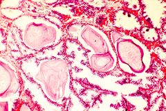 Photomicrograph of prostate hyperplasia stock photo