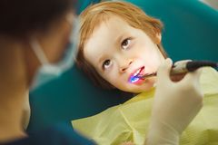 Photopolymer seal child, pediatric dentistry without pain stock photos