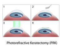 Photorefractive Keratectomy (PRK) surgery Royalty Free Stock Photography