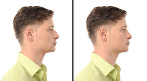 Before and after photos of a young man with nose job plastic surgery. Royalty Free Stock Photos