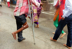 Physically challenged man beg in front of temple. On Krishnastami day on August 25,2016 in Hyderabad,India Stock Photography