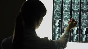 Physician diagnosing problems with back, x-ray image revealing serious disease stock footage