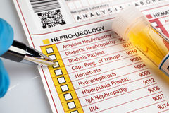 Physician filling medical form of urianalysis diagnostic Stock Images