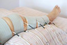 Physiothérapie et réadaptation patientes de jambe par la thérapie d'electrostimulation pour diminuer la douleur et pour améliorer images stock