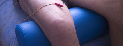 Physiotherapie acupunture Stockbilder