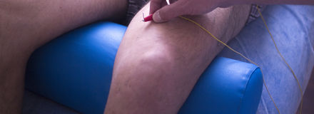 Physiotherapie acupunture Lizenzfreie Stockfotos
