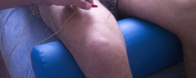 Physiotherapie acupunture Stockfoto
