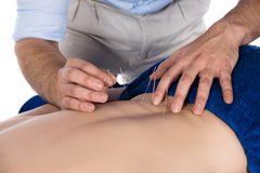 Physiotherapist doing accupuncture Royalty Free Stock Photos